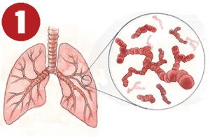 A bacterium such as Staphylococcus aureus infects the lungs of an intubated patient and begins to release signature VOCs.